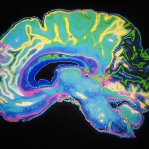 Neurosurgery